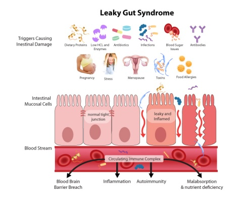 leakyGut_large